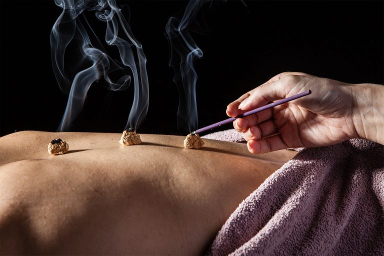 Learn about the basics of traditional Chinese medicine